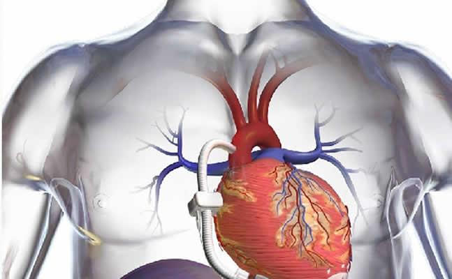 Μόνιμη τεχνητή καρδιά